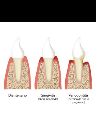 Tratamiento de la periodontitis en Marbella